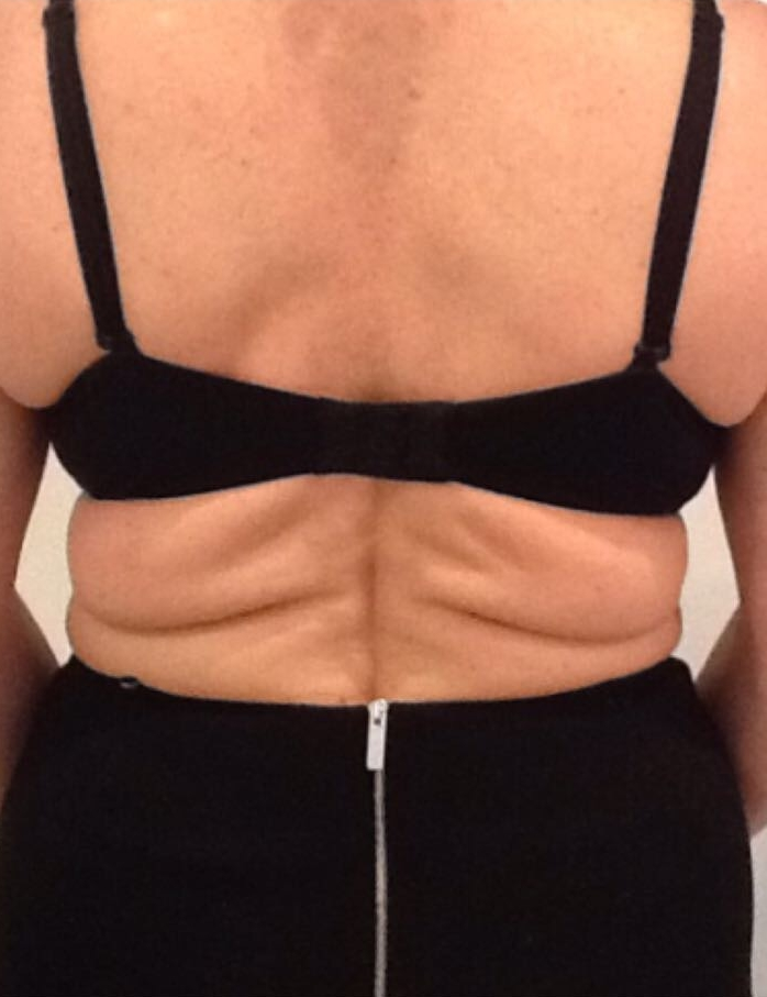 Before body sculpting in London - Dr Dray, aesthetic doctor