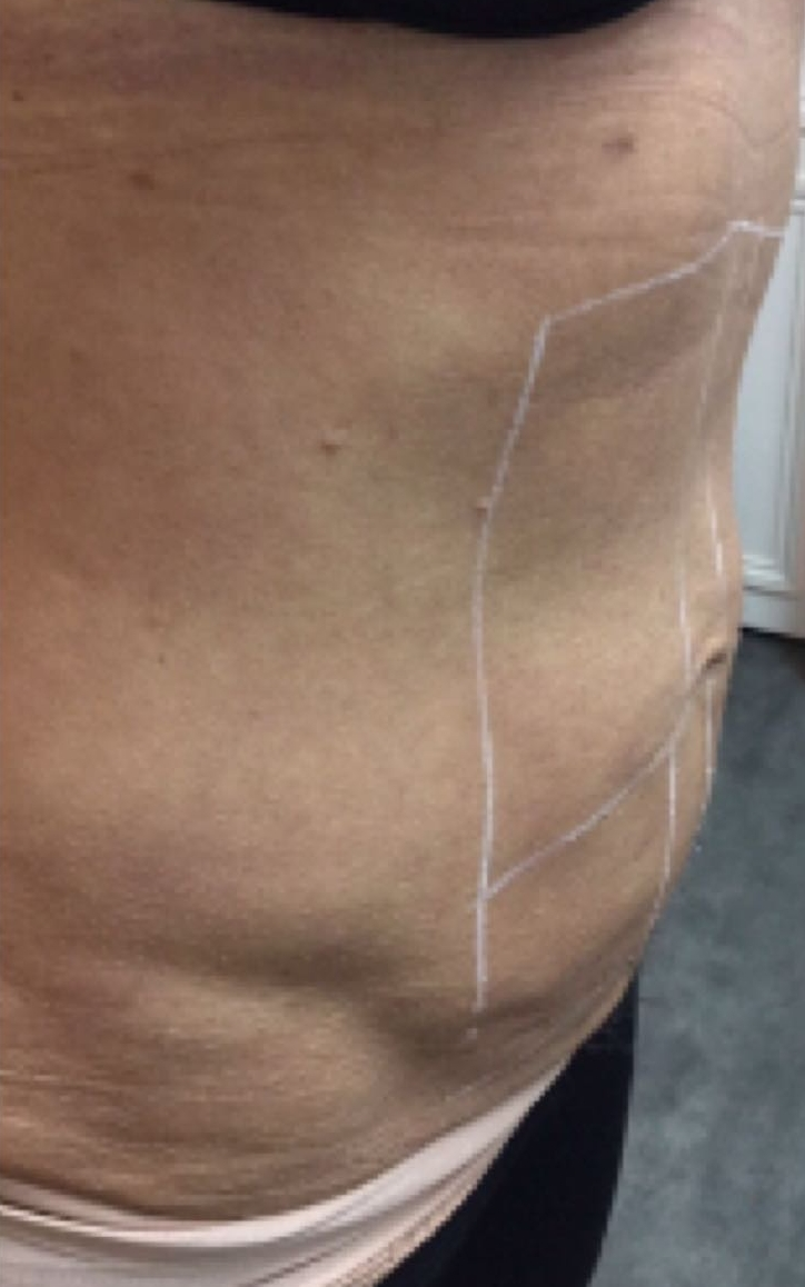 Photo before cryolipolysis in London - Dr Dray, cosmetic doctor