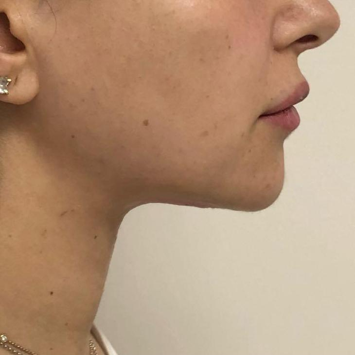 After chin reduction in London - Dr Dray, aesthetic medicine