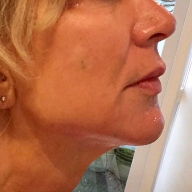 After jawline and chin reshaping in London - Dr Dray, aesthetic medicine
