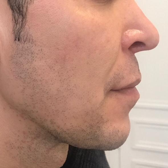 Before chin and jawline treatment for men in London - Dr Dray