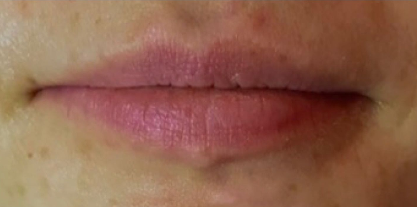 Photo before lip refresh in London - Dr Dray aesthetic doctor