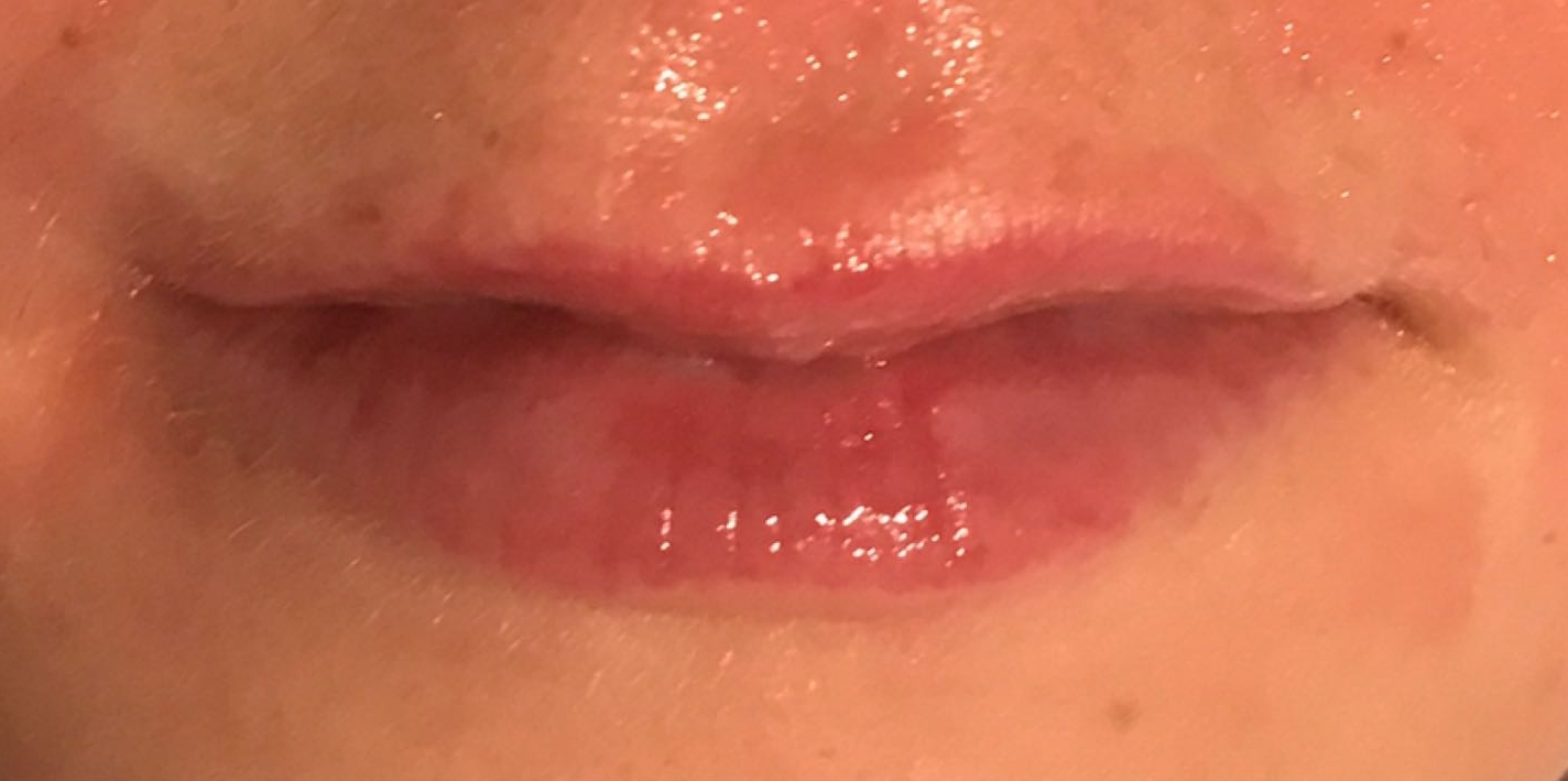 Before lip injection with hyaluronic acid in London - Dr Dray
