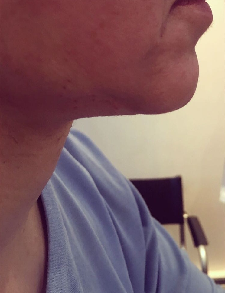 Picture after neck lift in London - Dr Dray, aesthetic medicine