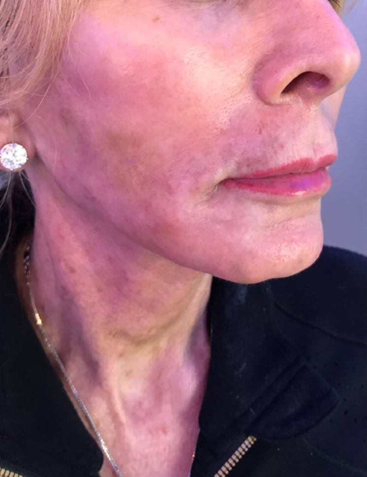 After neck lift treatment in London - Dr Dray, aesthetic doctor