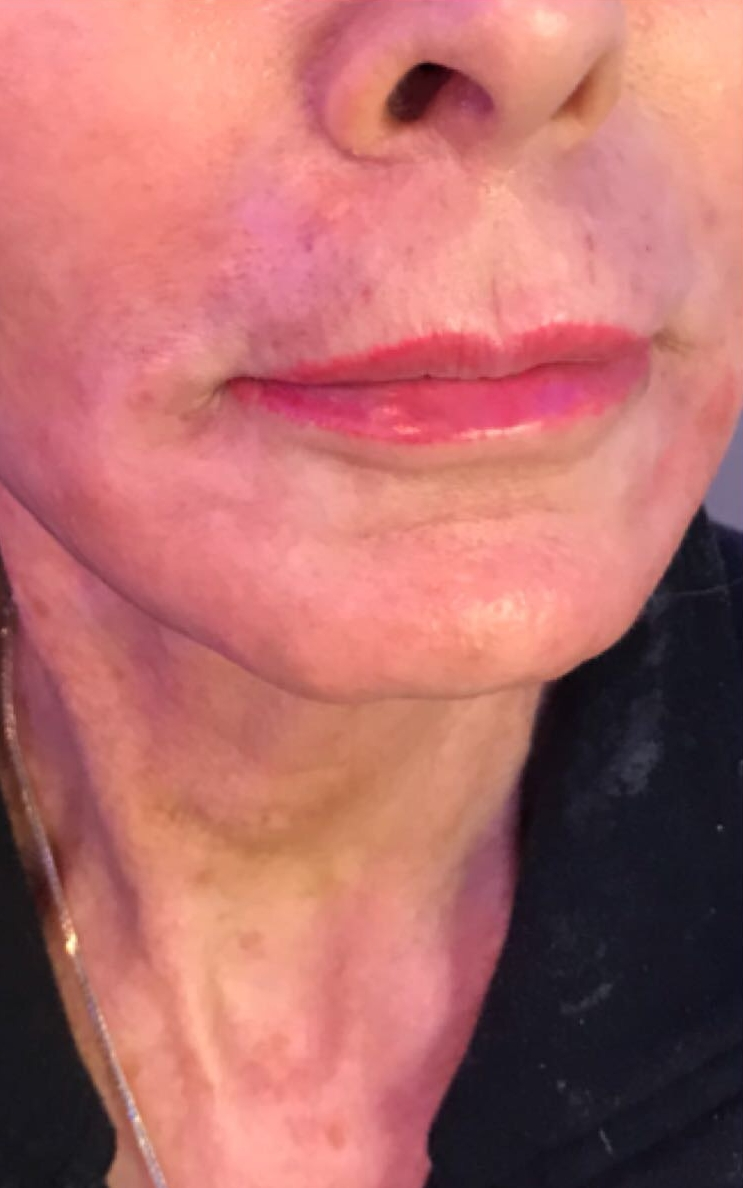 After neck lift with ultherapy in London - Dr Dray, aesthetic medicine