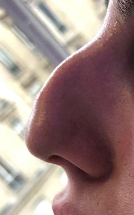 Before nose reshaping in London - Dr Dray, cosmetic medicine