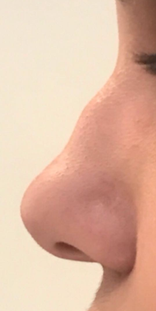 Before medical nose reshaping in London - Dr Dray aesthetic doctor