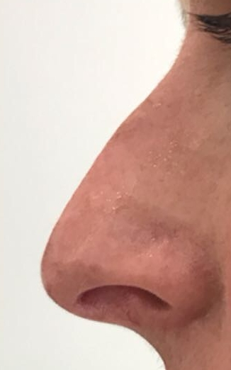 Before nose lift in London - Dr Dray, aesthetic and cosmetic medicine