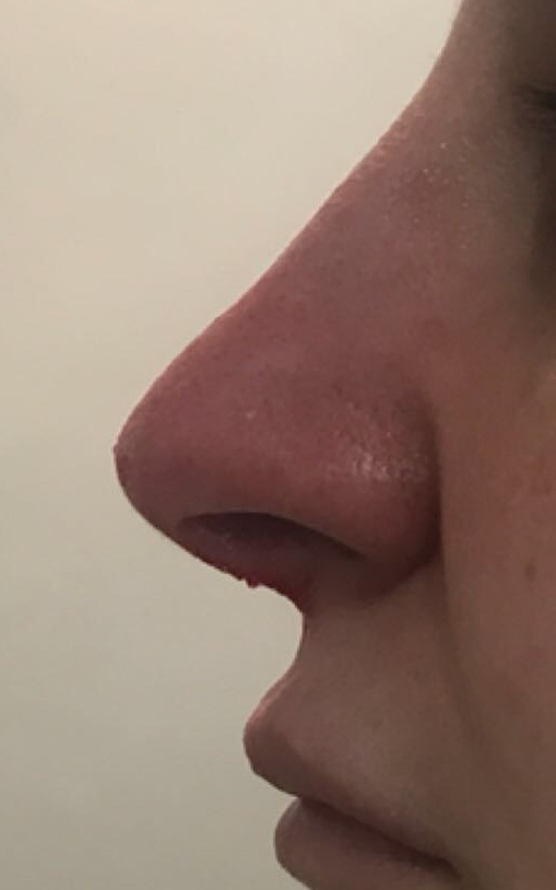 After medical rhinoplasty in London - Dr Dray, aesthetic medicine