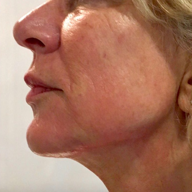 After aesthetic treatment for skin quality in London - Dr Dray