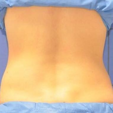 Before Cryolift with Coolsculpting technology - Dr Dray London