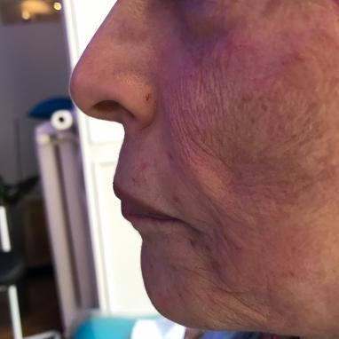 Before treatment for skin quality in London - Dr Dray