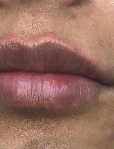 Lip Refresh 4 After