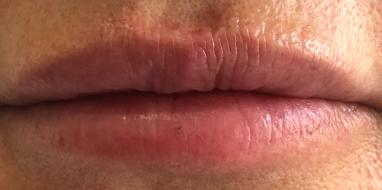 Lip Refresh 3 After