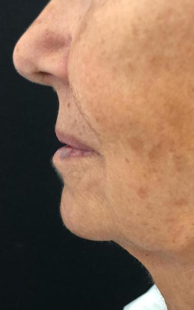 10 Min Facelift Img 3850 Cropped before