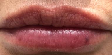 Lips Img 5536 Cropped after