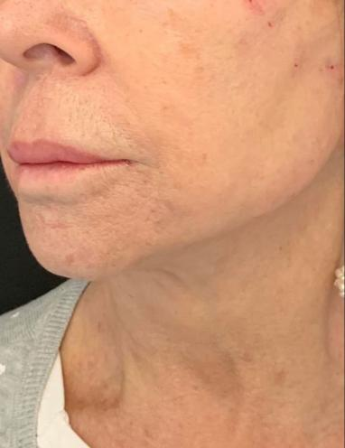 Threadlift in London - Non surgical facelift | Dr Dray