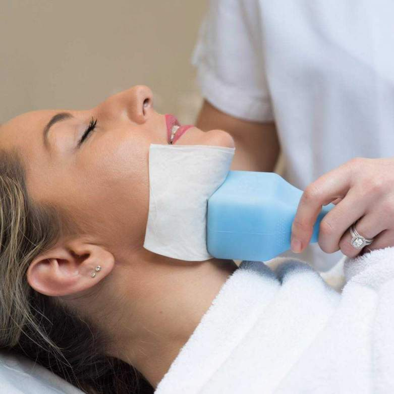 Cryolift Double Chin 1