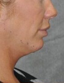 Photo before chin and jawline treatment in London - Dr Dray