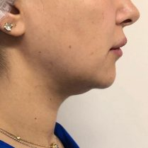 Before chin reduction in London - Dr Dray, aesthetic medicine