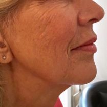 Before jawline and chin reshaping in London - Dr Dray, aesthetic medicine
