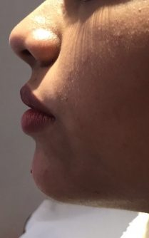 After chin and jawline treatment for women in London - Dr Dray