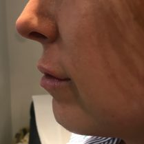 Before jawline and chin treatment in London - Dr Dray