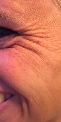 Before Botox injection for crow's feet - Dr Dray London