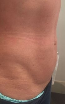 Photo after cryolipolysis in London - Dr Dray, cosmetic doctor