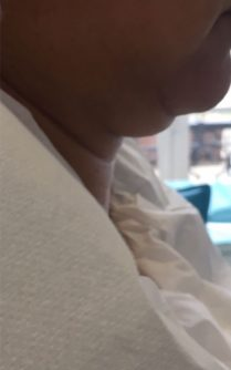 Photo before neck lift in London - Dr Dray, aesthetic medicine