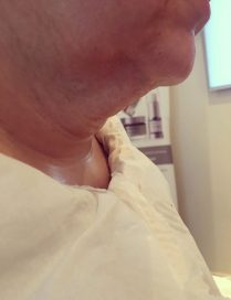 Picture before neck lift in London - Dr Dray, aesthetic medicine