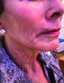 Before neck lift treatement in London - Dr Dray, aesthetic doctor