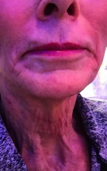 Before neck lift with ultherapy in London - Dr Dray, aesthetic medicine