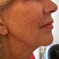 Before skin treatment to improve skin quality - Dr Dray London