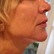 After skin treatment to improve skin quality - Dr Dray London