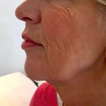 Before aesthetic treatment for skin quality in London - Dr Dray