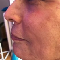 After treatment for skin quality in London - Dr Dray