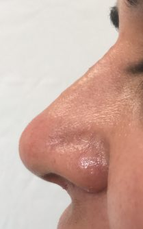 After non surgical nose reshaping in London - Dr Dray