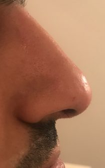 Photo after non surgical nose reshaping in London - Dr Dray