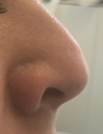 Before non surgical nose job in London - Dr Dray, aesthetic doctor