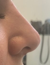 After non surgical nose job in London - Dr Dray, aesthetic doctor