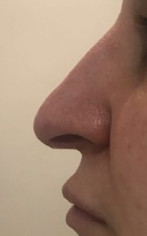 Before medical rhinoplasty in London - Dr Dray, aesthetic medicine