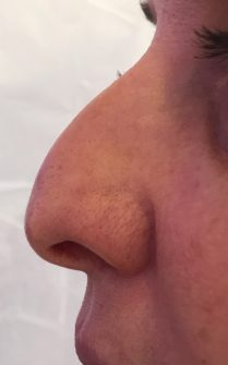 Picture before non surgical rhinoplasty in London - Dr Dray
