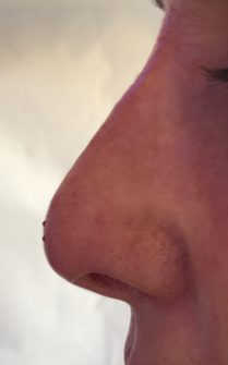 Picture after non surgical rhinoplasty in London - Dr Dray