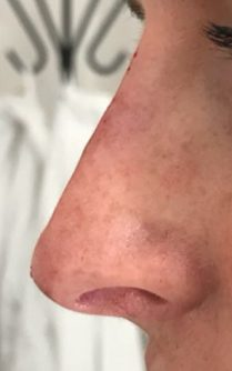 After nose lift in London - Dr Dray, aesthetic and cosmetic medicine