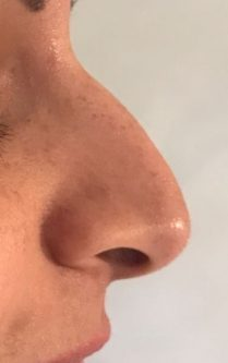Before non surgical rhinoplasty in London - Dr Dray, aesthetic medicine