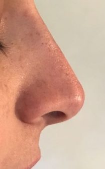 After non surgical rhinoplasty in London - Dr Dray, aesthetic medicine