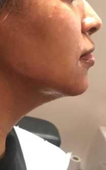Chin_and_jawline_IMG_4797_cropped_A