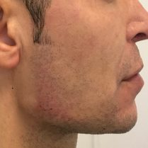 After chin and jawline treatment for men in London - Dr Dray